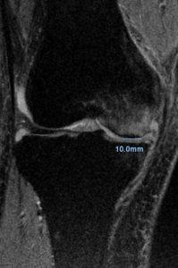 Stage 1 大腿骨顆部骨壊死MRI