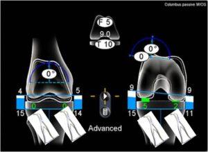 ナビゲーション人工膝関節置換術バランス