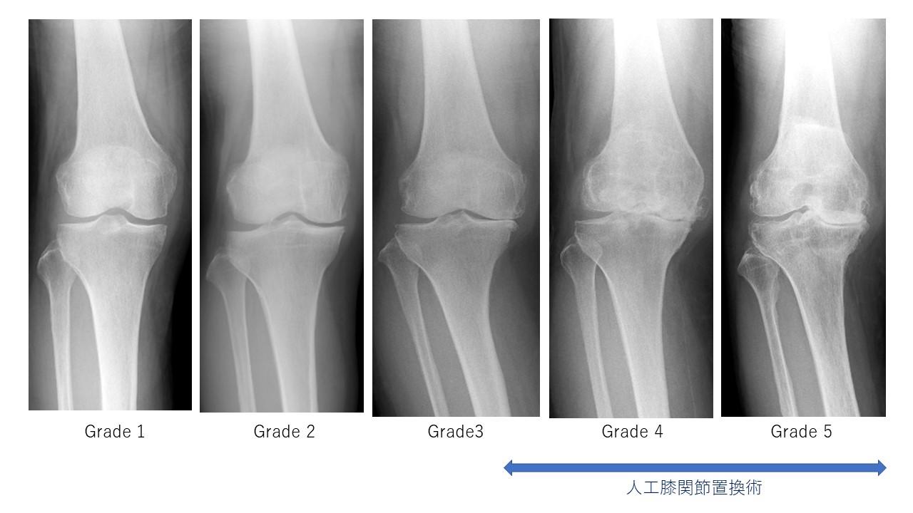 人工膝関節置換術の適応