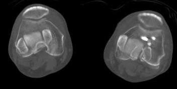 膝関節と足関節を重ね合わせたCT像
