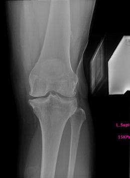 変形性膝関節症外反ストレス像