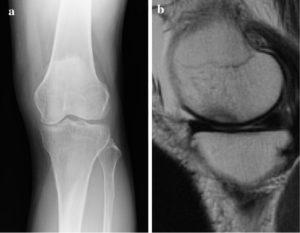特発性膝骨壊死保存例