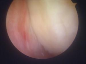 特発性膝骨壊死2鏡視下モザイク関節鏡所見
