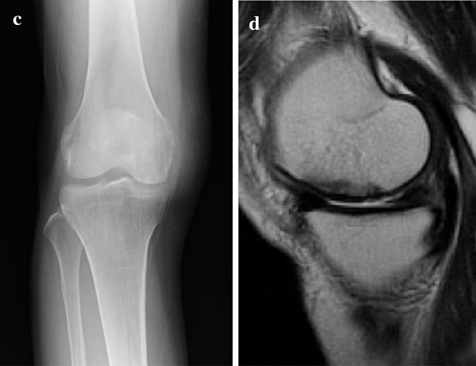 膝骨壊死手術例