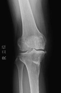 特発性膝骨壊死手術後Xp