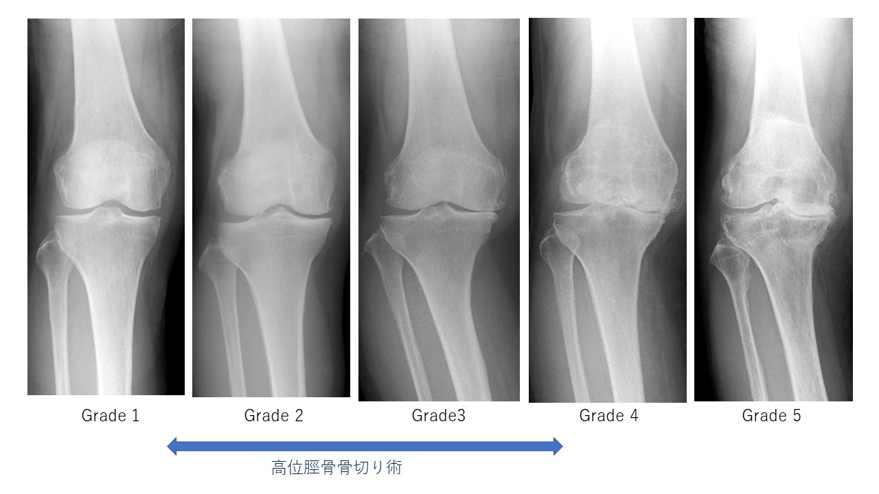 変形性膝関節症の重症度レントゲン分類