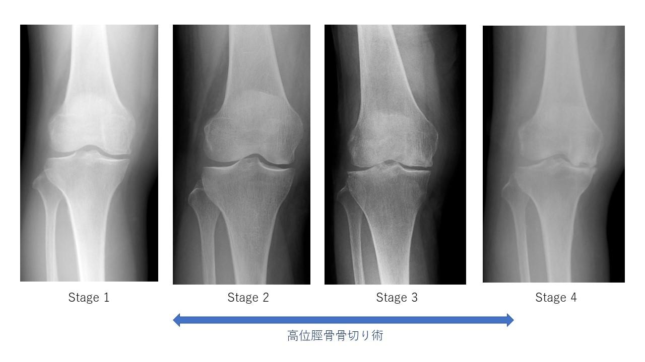 特発性大腿骨顆部骨壊死レントゲンStage分類と高位脛骨骨切り術