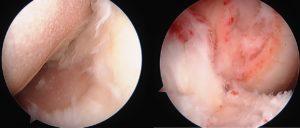 OWHTOACL手術中関節鏡所見