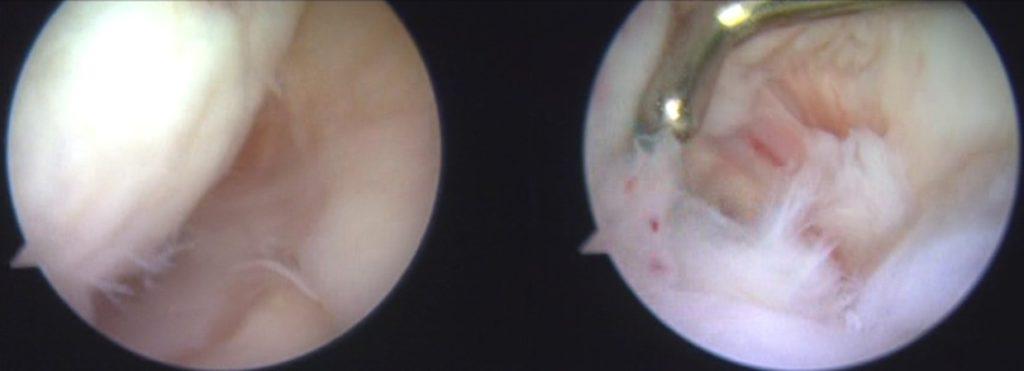 OWHTOACL手術後関節鏡所見