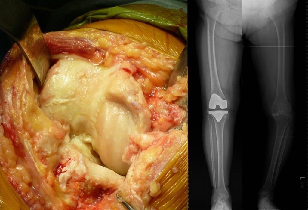 人工膝関節置換術右手術中写真と手術後Xp