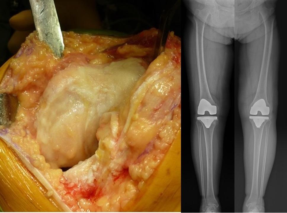 人工膝関節置換術左手術中写真と両側手術後Xp