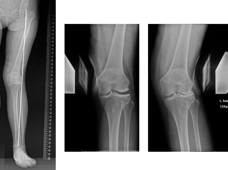外側型変形性膝関節症手術前Xp