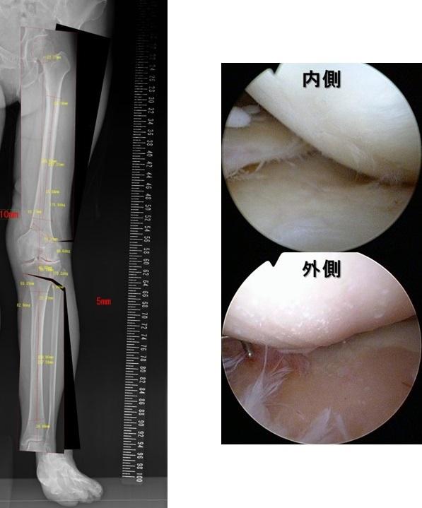 外側型変形性膝関節症術前計画と手術中関節鏡所見